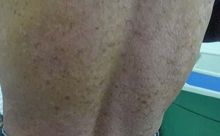 腿上出现牛皮癣要怎么治疗